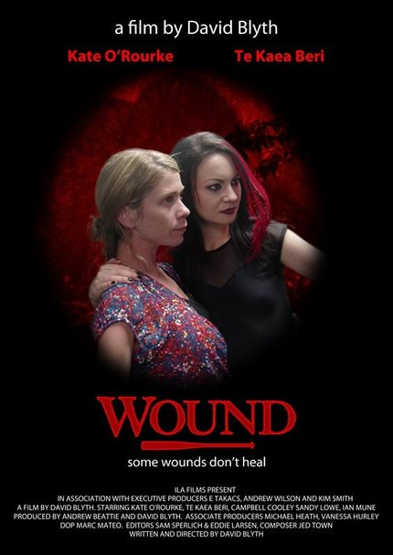 """the blackness just keeps creeping in"" HELLO DARKNESS - Wound Review"